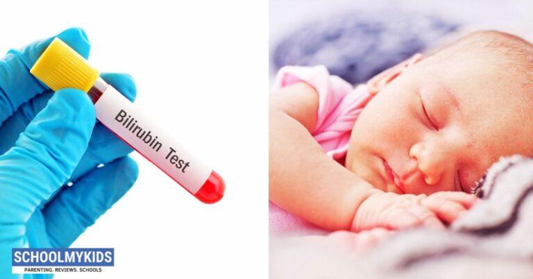 नवजात शिशु में पीलिया: लक्षण, कारण, इलाज – Newborn Jaundice in Hindi
